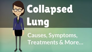 Collapsed Lung -  Causes, Symptoms, Treatments & More…