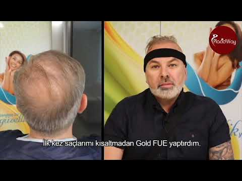 Hair-Transplant-with-Choi-Pen-by-Dr-Emrak-Cinik-at-Istanbul-Turkey