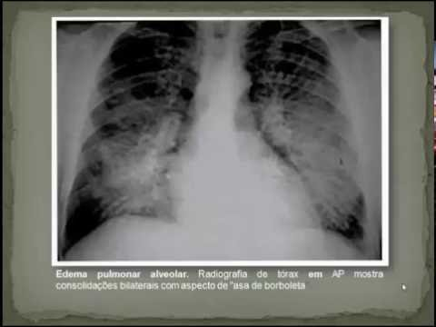 Estatísticas de doença hipertensiva na OMS