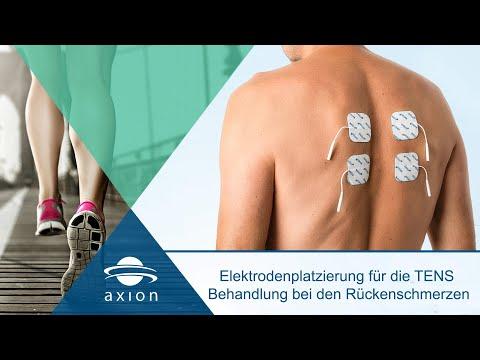Elektrodenplatzierung für die TENS  Behandlung bei den Rückenschmerzen