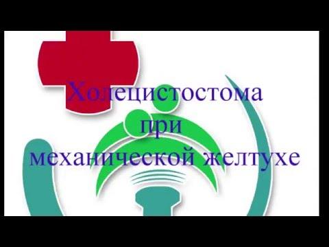 Билирубин после гепатита а у взрослого