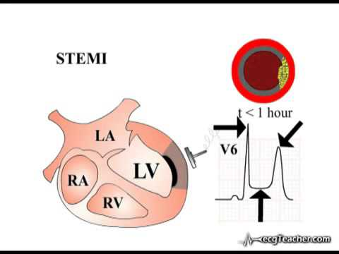 La fièvre, et une augmentation de la pression artérielle