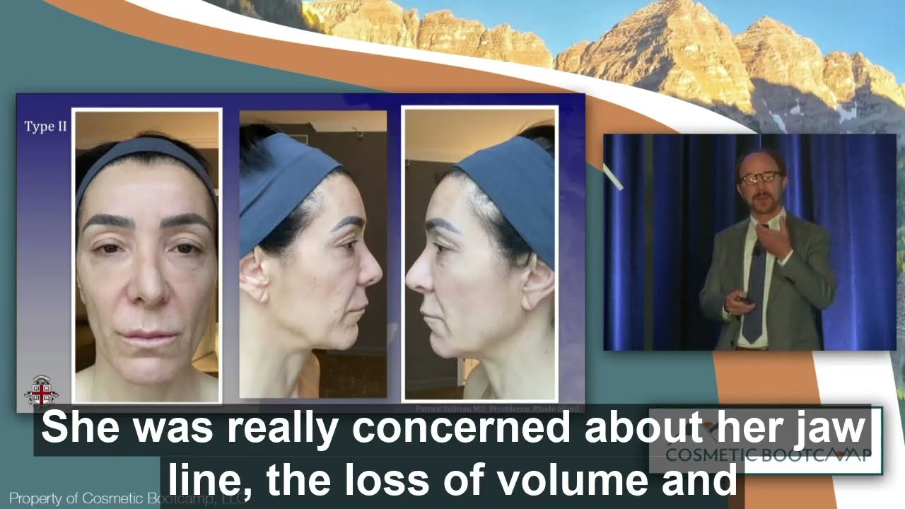 Dr. Sullivan Talks About Jawline Shaping