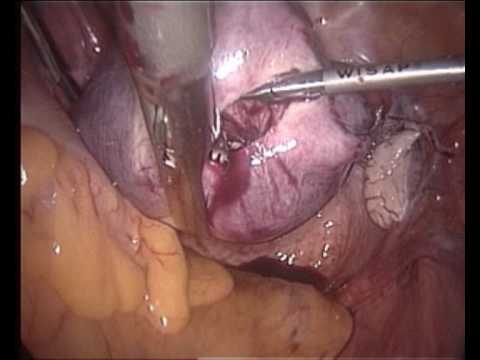 Subtotal Uterus Removal: Classic Interfascial Supracervical Hysterectomy