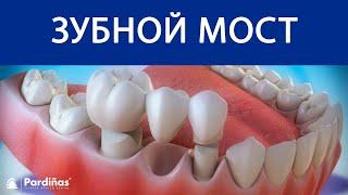 Как делают слепки зубов для протезирования