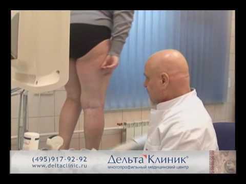 Les ulcères des veines du pied