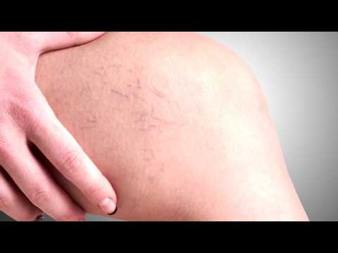 Complicazioni dopo rimozione di una vena su una gamba