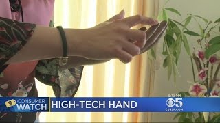 ConsumerWatch Helps Bay Area Woman Get More Modern Prosthetic