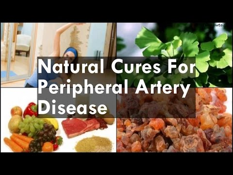 Video Natural Cures For Peripheral Artery Disease