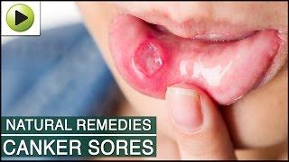 Canker Sores - Natural Ayurvedic Home Remedies