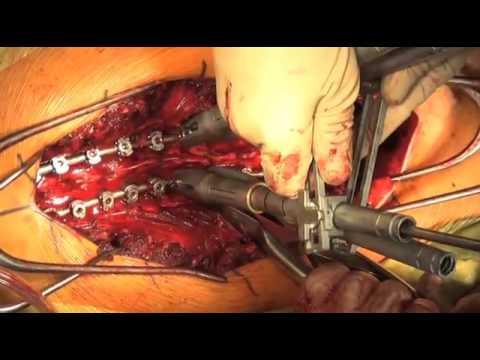 Articulaciones inflamadas en el dolor en el pie