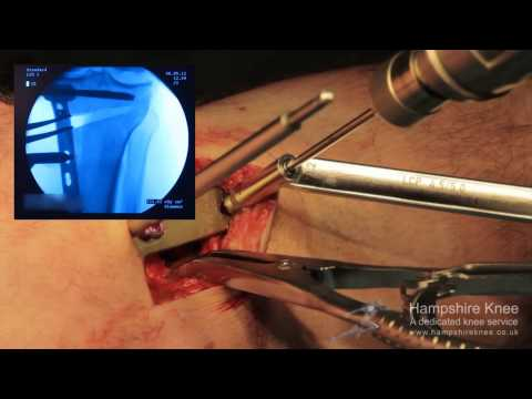 HTO - (High Tibial Osteotomy) - Knee Surgery