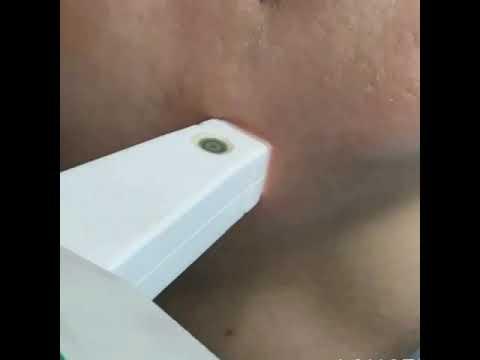 Маски для лица из имбиря от пигментных пятен