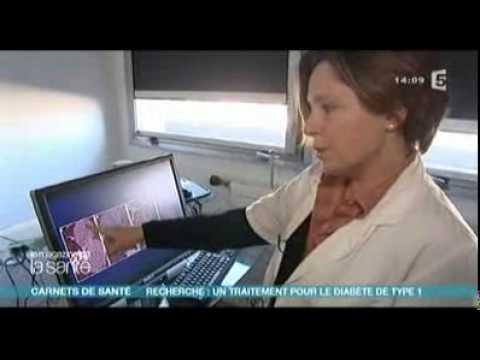 Transpiration dans le diabète