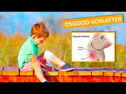 Da ciò che fa male gamba in dellarticolazione dellanca