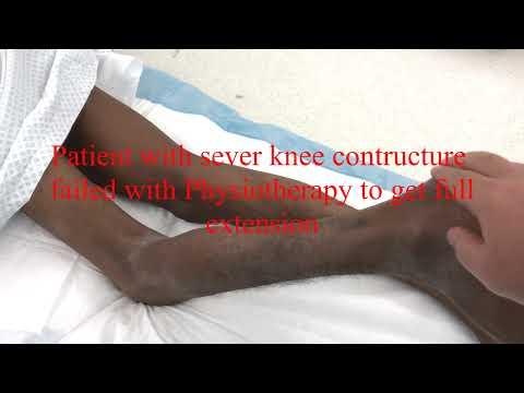 Ce să înjunghii pentru durerea articulației șoldului