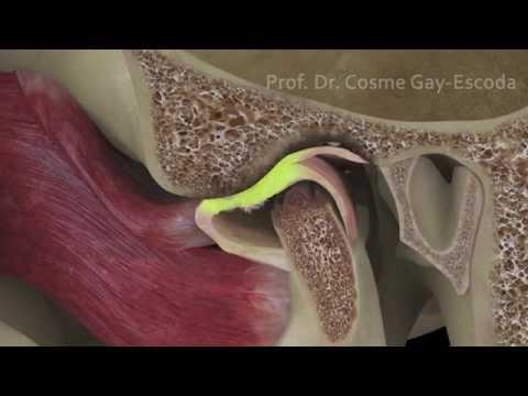 Cómo restaurar las articulaciones después de la lesión