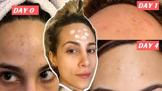 How to STOP picking at your skin & HEAL acne scabs FAST from picking