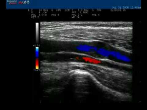 การกำจัดของหลอดเลือดดำที่ขาใน Drezna