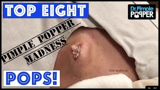 EIGHT POPS for you - PIMPLE POPPER MADNESS!!