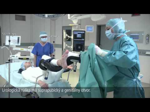Ultraschall-Prostatabiopsie