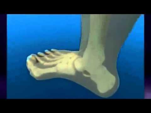 Który otworzył deformacji stóp