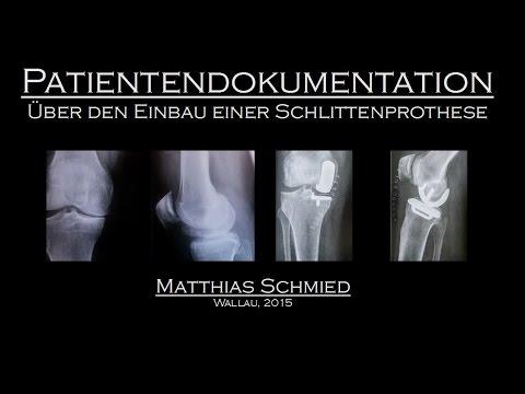 Eingeklemmter Nerv Kniebehandlung