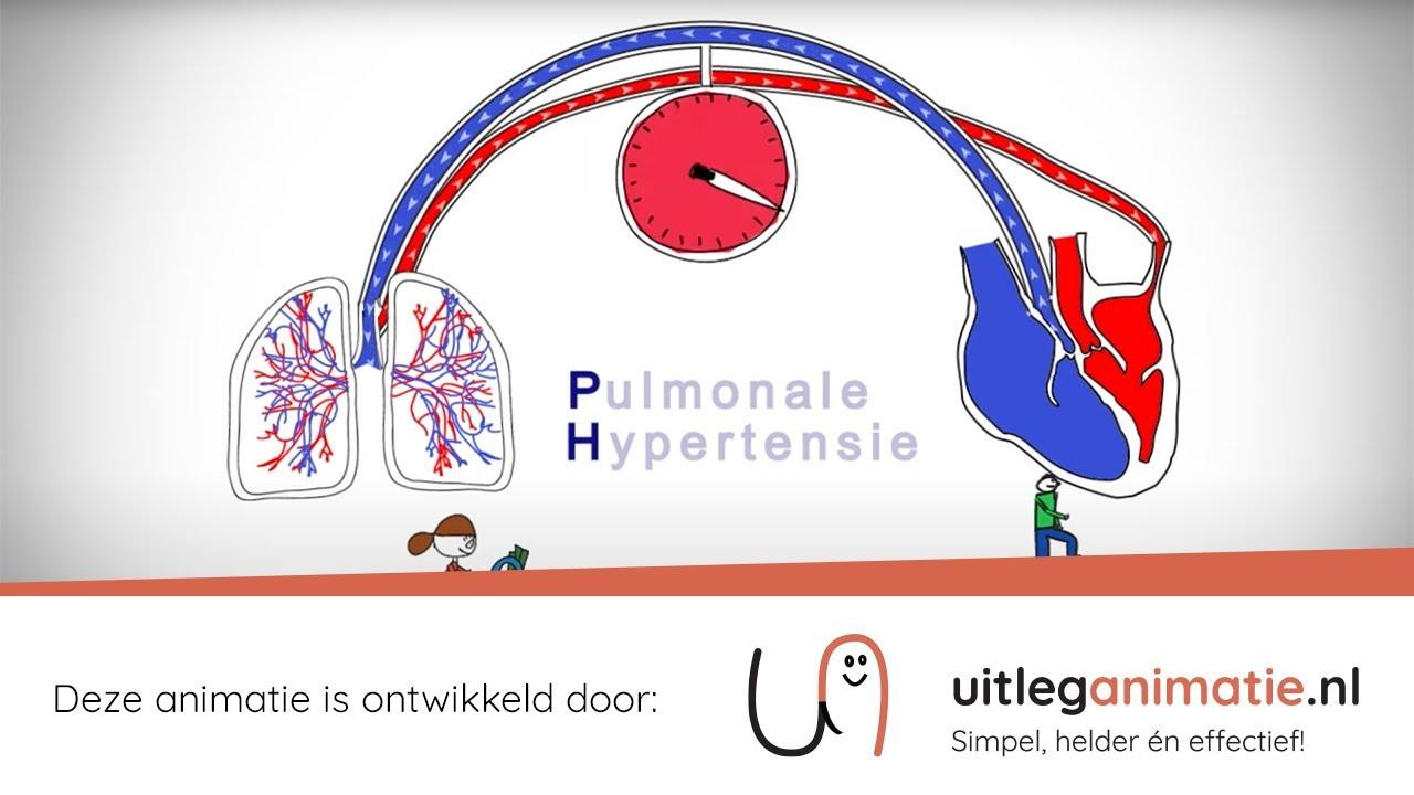 VUmc Pulmonale Hypertensie