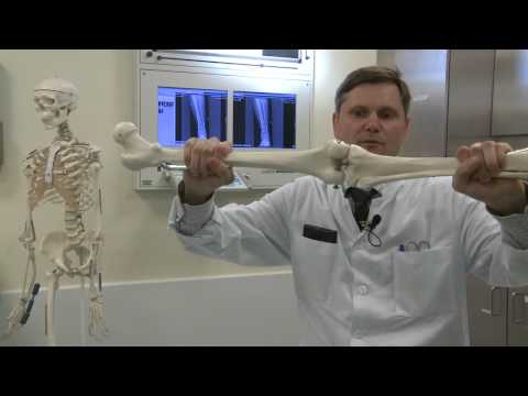 Orthopädische Matratze, warum wunde unterer Rücken