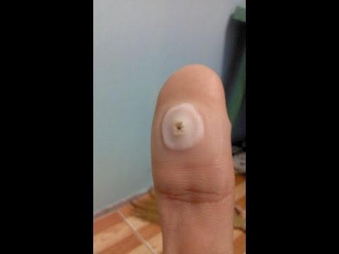 Kuko sa paa thumb ang layo mula sa Photo skin treatment