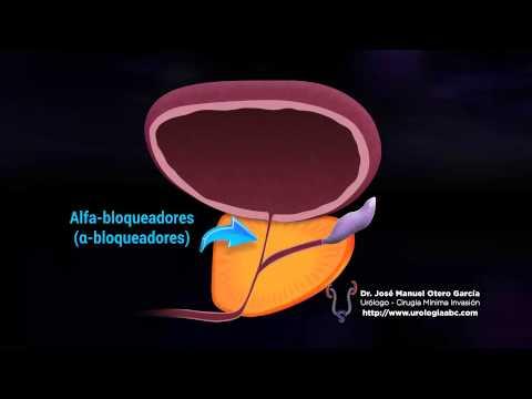 Nel mal di schiena nella prostata