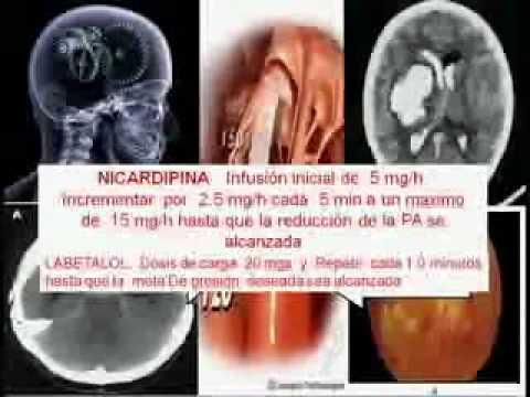 Las causas y consecuencias de la hipertensión arterial