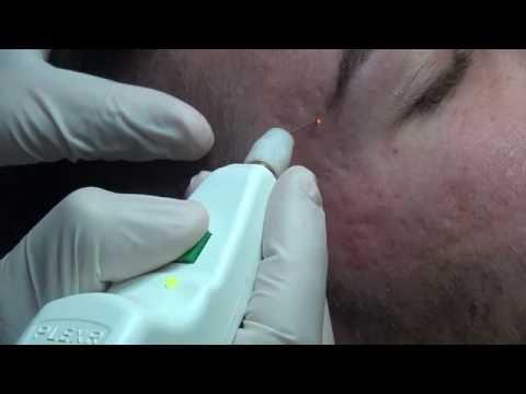Correction Acne Scars with PLEXR