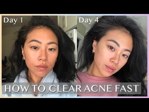 HOW I GET RID OF ACNE – in 4 days! W/ PHOTOS
