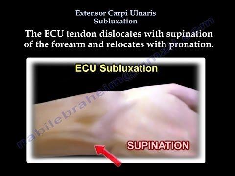C5 c6 Bandscheibenprotrusion der Halswirbelsäule