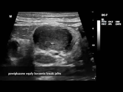Masaż prostaty wideo