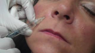 Dr. Choe injects Juvederm to smile lines (Nasolabial folds)