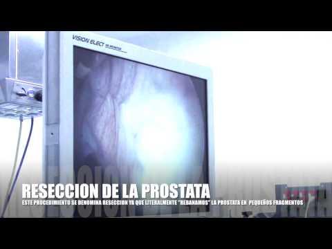 Es reduziert die Entzündung der Prostata