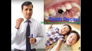 Tooth Decay - Why, How, and How to Prevent!!!