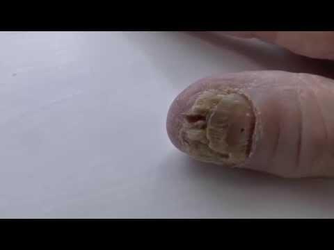 Kuko halamang-singaw sintomas sa larawan leg