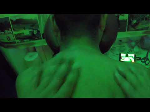 Trattamento intrappolamento del nervo dellanca