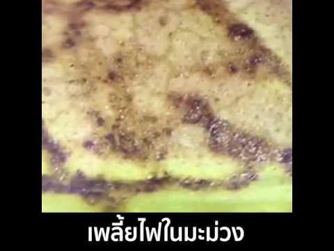 Giardia tinidazole หรือ metronidazole