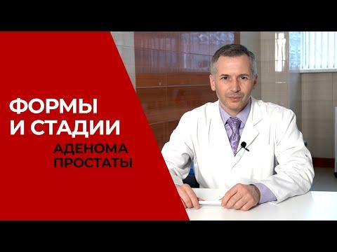 Modern prosztatagyulladás-kezelések
