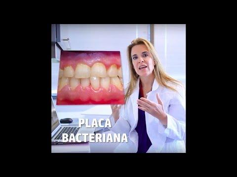 ¿Qué son las caries y la enfermedad periodontal?