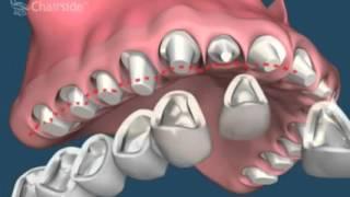 Щель между зубами, диастема и многое другое