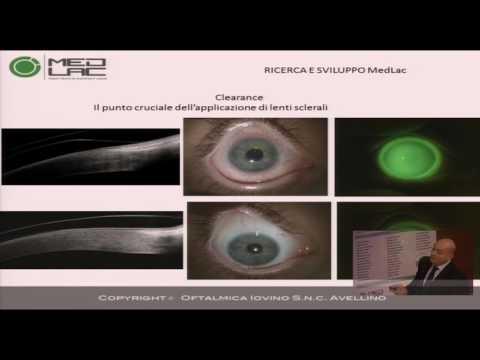 Ce este miopia 6 dioptrii