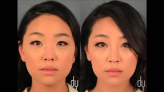 Nose Job without surgery with fillers