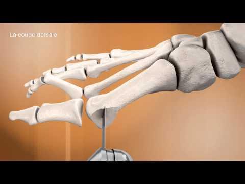 Duża kość na kciuk