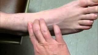 Sample Video - Palpate for Dorsalis Pedis Pulse