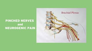 Pinched Nerves and Neurogenic Pain
